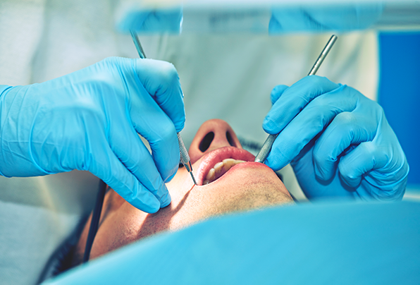 After Root Canal Toronto