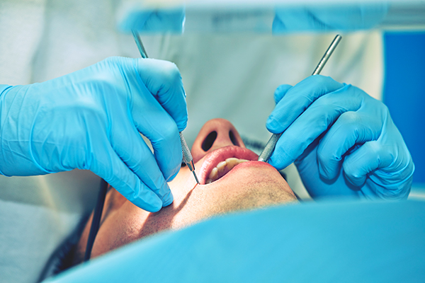 root-canal-retreatment-toronto